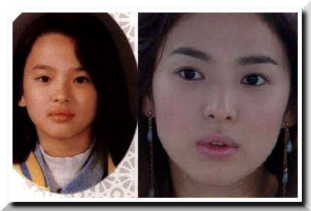 Song Hye Kyo, is The Most On Demand Face Constructed by Scalpel?