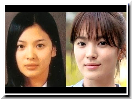 Song Hye Kyo Is The Most On Demand Face Constructed By Scalpel