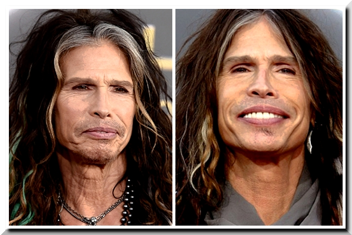 Steven Tyler, His New Face is Extremely Visible Failure