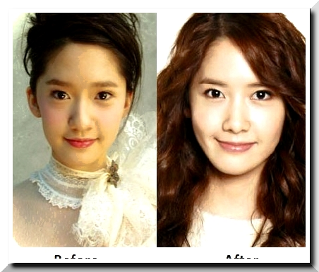 Has Yoona Had Platic Surgery?